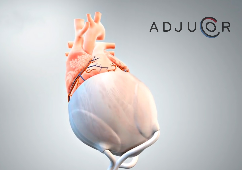 AdjuCor GmbH Impression